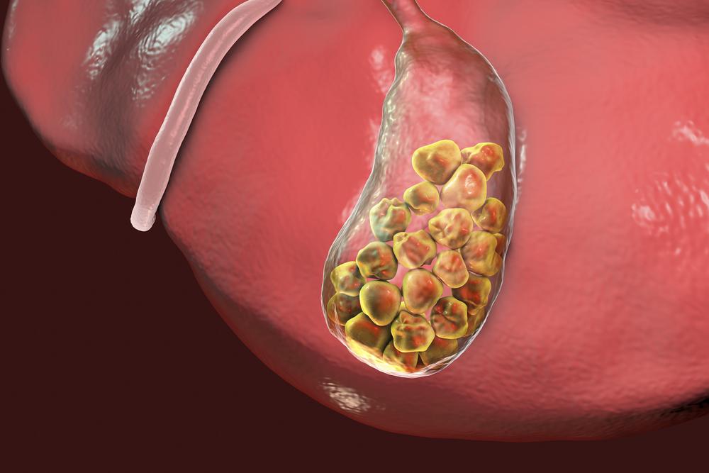 cálculo de vesícula biliar